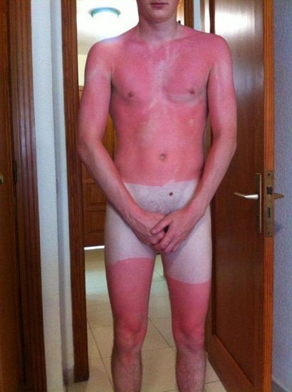 bad sunburn in ireland
